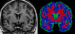 Brain Scans: In the tissue segmented image, voxels with signal value most representative of gray matter are shown in blue, white matter in red and cerebrospinal fluid in green.
