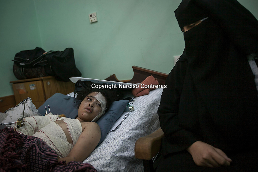 "In this Saturday, Aug. 16, 2014 photo, Haneen Bakri, a 9 yo girl, rests on a bed at Al-Shifa hospital as she recovers from her wounds after an Israeli airstrike targeted her family house during the ""Protective Edge"" Israeli military operation in the centre of Gaza City. Several members of her family were killed during a truce, among them her mother, two sisters, her unkle and cousin. Gasa Strip. (Photo/Narciso Contreras)"