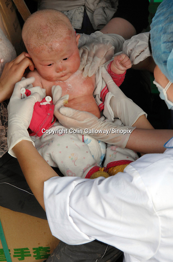 Medical workers tend a young baby survivor of the Sichuan earthquake after it is brought from the mountains by its mother..14 May 2008