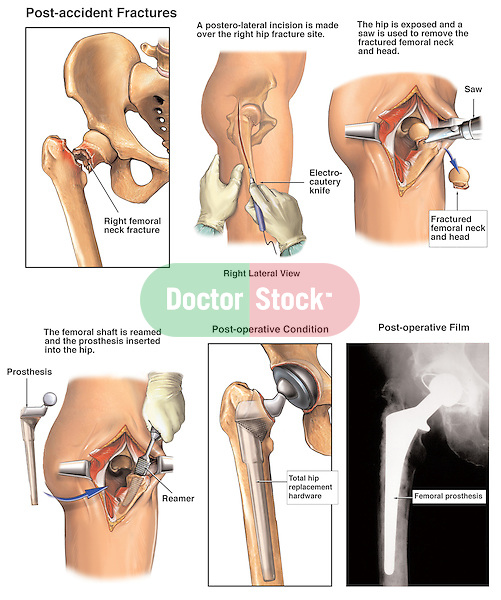 Fractured Hip - Total Joint Replacement Surgery. This exhibit features seveal sequential illustrations revealing elements of a Post-accident Right Hip Fracture with Subsequent Surgical Replacement of the damaged joint with a total hip replacement prosthesis (prosthetics).