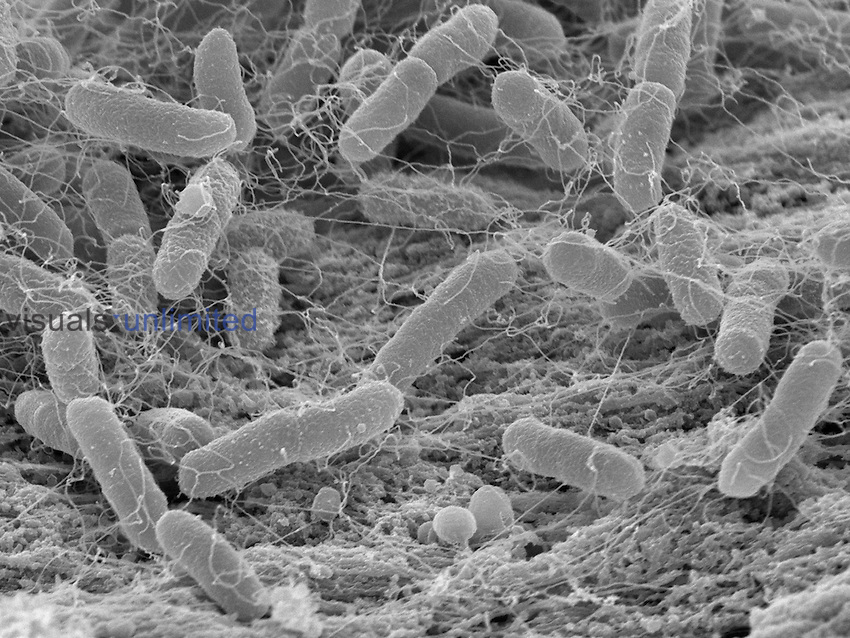 Salmonella enterica Bacteria growing on chicken meat. These pathogens are common causes of food poisoning called salmonellosis. Note the long flagella. SEM X15,000 at 4 x 5 inch