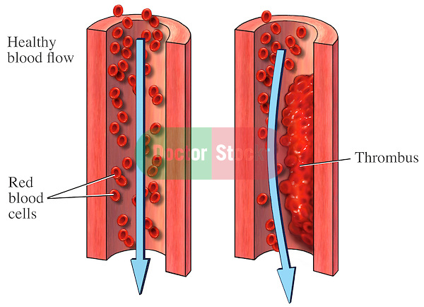This medical exhibit illustrates normal blood flow verses an artery with a thrombus.