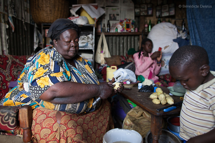 """Mama Safi""peels potatoes at her home in Kawangware slum in Nairobi, Kenya on March 25, 2013. Susan Kalai aka ""Mama Safi"" is a 53 year old Kenyan woman with severe morbid obesity living in Kawangware slum in Nairobi, Kenya. She lives on less than $1 USD a day, selling vegetables and fried potatoes in the street in front of her house. She has 7 children, the youngest one is 9 years old. She suffers from several obesity-related diseases. She can't walk, has a lot of pain in her legs and back and also has difficulties to breathe. She says ""I was born big. I was always like this. Both my parents and my sister are big too. So for me it's normal. Nothing is wrong with me"". She has no knowledge about obesity and she can't go to the doctor to get treated because she has no money to pay for it. She is afraid to die of a heart attack. Although large parts of Africa are plagued with malnutrition, the continent must now also deal with another problem: obesity. Obesity is fast becoming a serious problem in Kenya and even the poorest are now being affected. Obesity rates are climbing around the world and they are rising faster in developing countries than in developed ones. (Photo by Benedicte Desrus)"