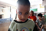 A boy with severe cataracts poses for a picture at the Doc Son Pagoda orphanage in Hue, Vietnam. The orphanage is currently home to 170 children, some of whom have physical or mental disabilities. April 22, 2013.