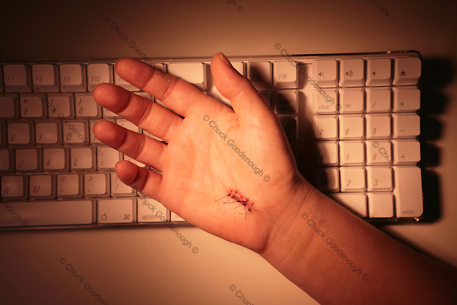 Photo of a hand resting on a computer keyboard with stitches in it from carpal-tunnel surgery.