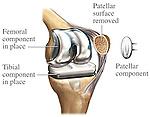 Total Knee Joint Replacement Surgery (Arthroplasty). This illustration features a single surgical view of the bones of the left knee showing the placement of a patellar button component in a knee replacement. Specifically labeled are; Femoral component in place, tibial component in place, patellar surface removed and patellar component.