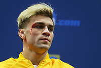 CLEVELAND, OH - MARCH 17: Bryce Meredith of the Wyoming Cowboys bleeds from a cut above his eye as he stands on the awards podium during session six of the NCAA Wrestling Championships on March 17, 2018 at QuickenLoans Arena in Cleveland, Ohio. (Photo by Hunter Martin/NCAA Photos via Getty Images) *** Local Caption *** Bryce Meredith