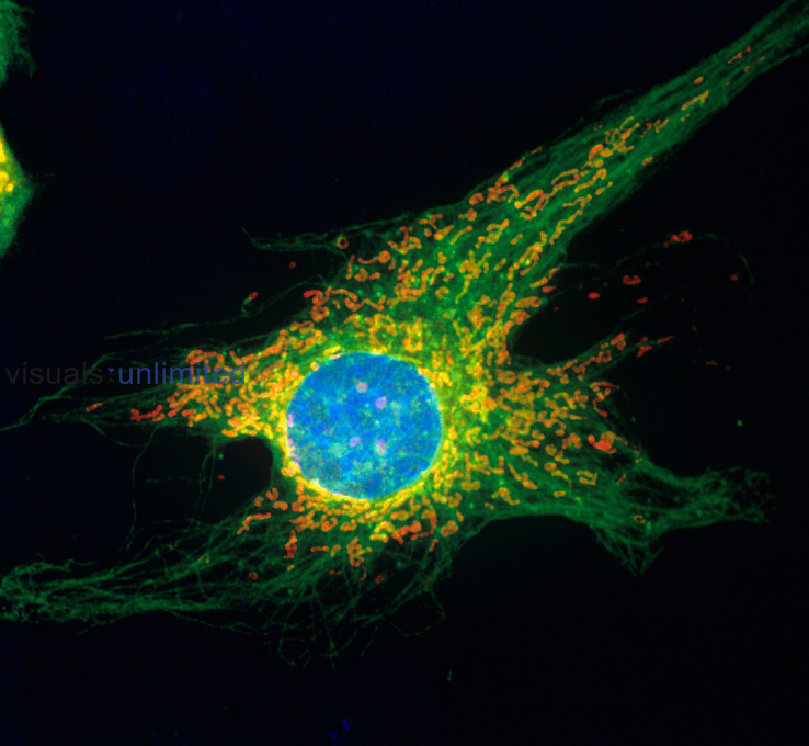 Fluorescent confocal view of a Hela Cell.