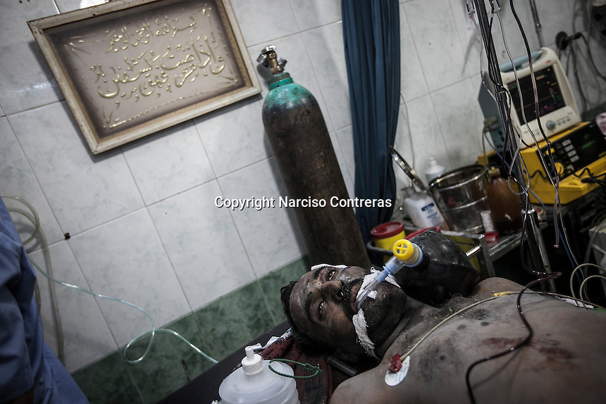 A Syrian civilian lies down unconscious inside an emergency ward as he struggles for life in a Hospital after was wounded by mortar shelling in Arkub district in Aleppo City.