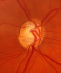 Primary open angle glaucoma showing loss of nerve axons, deep optic disc, and restricted visual fields.