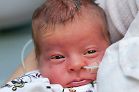 Premature Baby with feeding tube