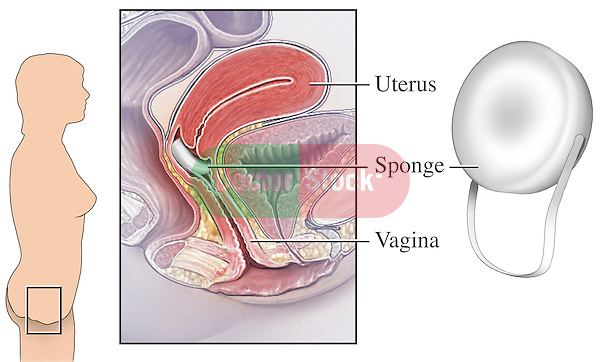 This medical illustration depicts the correct placement of a contraceptive sponge.