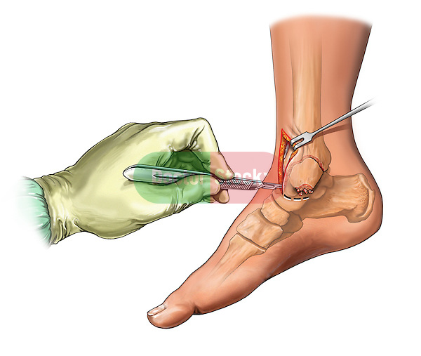 Anteromedial Incision of Ankle; this medical illustration illustrates an anteromedial incision to the ankle.