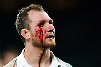 A bloodied Nick Koster of Cambridge University leaves the field after the match. The Men's Varsity Match between Oxford University and Cambridge University on December 6, 2018 at Twickenham Stadium in London, England. Photo by: Patrick Khachfe / Onside Images