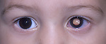 External eye color image showing the left eye with retinoblastoma.
