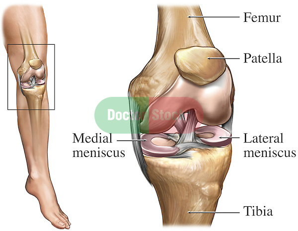 I0000idBy0bMAkuo on torn acl diagram