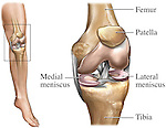This medical exhibit features the general anatomy of the left knee. The menisci and ligaments are included.