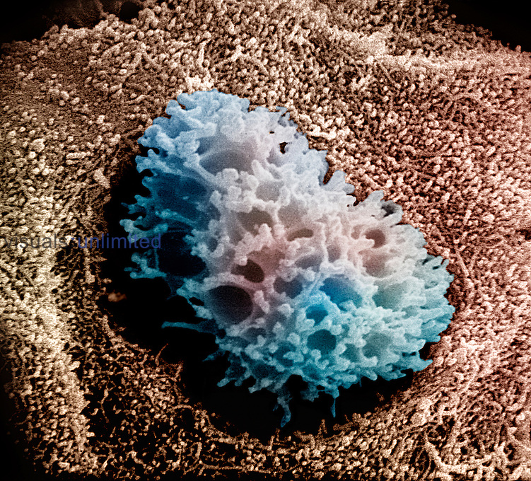An osteocyte within bone.  SEM X5520  **On Page Credit Required**