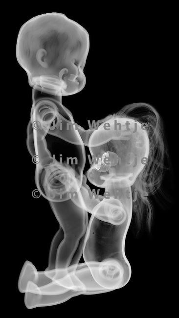X-ray image of fellatio (white on black) by Jim Wehtje, specialist in x-ray art and design images.