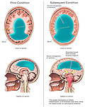 This custom medical exhibit compares sagittal and axial views of the brain in a patient with with severe hydrocephalus and excess ventricular fluid. The first images show a stable condition managed by an open shunt draining excess fluid. The second images reflect the condition which occurred after the shunt became blocked, resulting in a brainstem herniation and death.