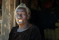 Elen Lanyom had her lips cut by Lord's Resistance Army (LRA) rebels in 1992 because her brother was a Ugandan Army soldier. Elen is a farmer and takes care of five grandchildren ever since her son was killed by LRA in 2004.