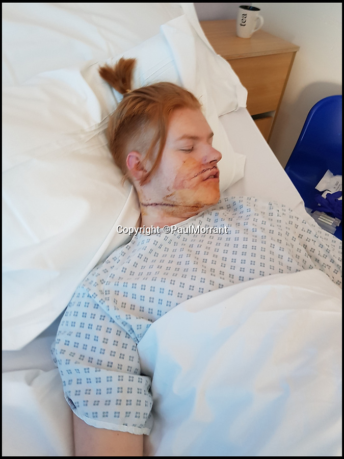 BNPS.co.uk (01202 558833)Pic: PaulMorrant/BNPS<br /> <br /> Glen Morrant in hospital after he was violently slashed round his throat. Glen needed 49 stitches from the 9in wound.<br /> <br /> A knife maniac who nearly killed an innocent bystander he mistook for someone he had a row with because both men had ginger hair was today jailed for 21 years.<br /> <br /> Kevin Boyle waited outside a Bournemouth nightclub for the red-headed reveller who had shoved him two hours earlier to appear.<br /> <br /> When clubber Glen Morrant walked out Boyle began to follow him by mistake because he was wearing similar clothes to the first man and also had ginger hair.<br /> <br /> Boyle slashed the 19-year-old by the throat. He was sentenced today at Winchester Crown Court.