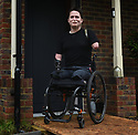 ALEX LEWIS, 37, STOCKBRIDGE, HAMPSHIRE, WHO BECAME QUADRAPLEGIC WHEN A COMMON COLD BECAME A FLESH EATING VIRUS WHO HAS BEEN MICROCHIPPED IN HIS BOTH STUMPS GIVING HIM ELECTRONIC ACCESS TO HIS HOME. PICTURE BY CLARE KENDALL. 20/12/2017.