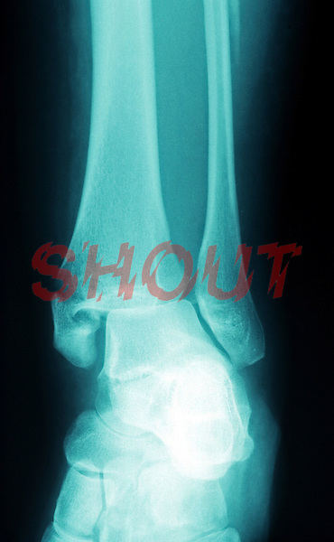 A lateral view  x-ray of an ankle fracture. This image may only be used to portray the subject in a positive manner..©shoutpictures.com..john@shoutpictures.com.