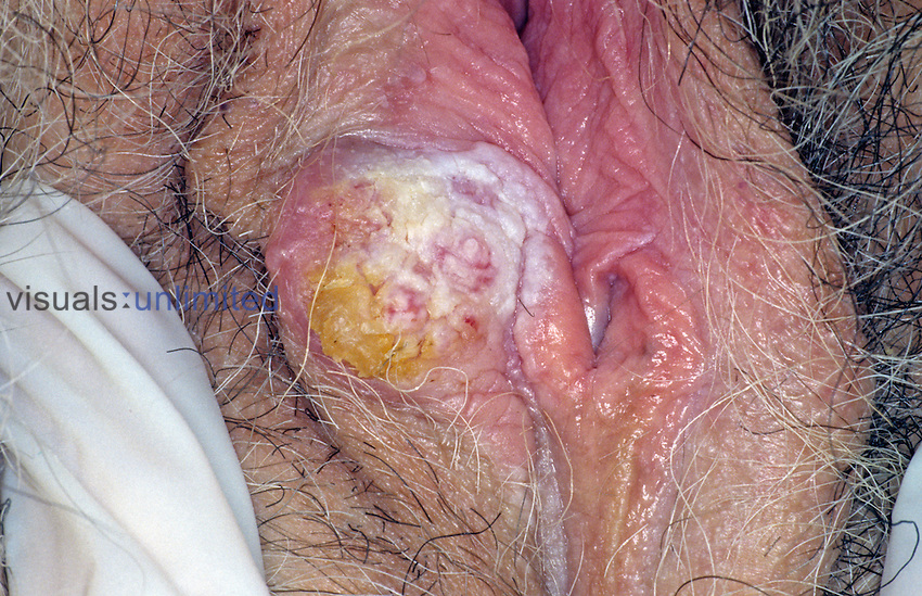 Squamous cell carcinoma of the vulva