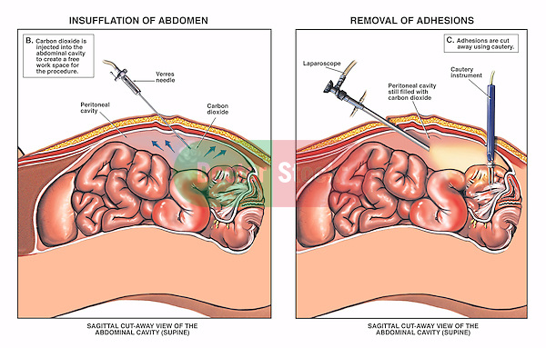 This custom medical exhibit reveals two surgical steps during release of abdominal small bowel adhesions. Specifiically shown are the insertion of a Verre's needle insufflating the abdomen, and the electro-cautery lysis  and release of adhesions under arthroscopic visualization.