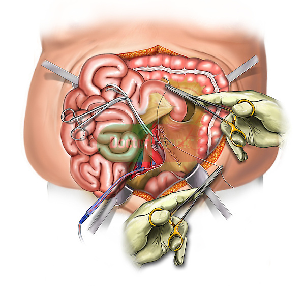 Retroperitoneal hemorrhage from injured aorta and IVC during trocar insertion. Illustration shows the aorta being repaired with sutured pledgets