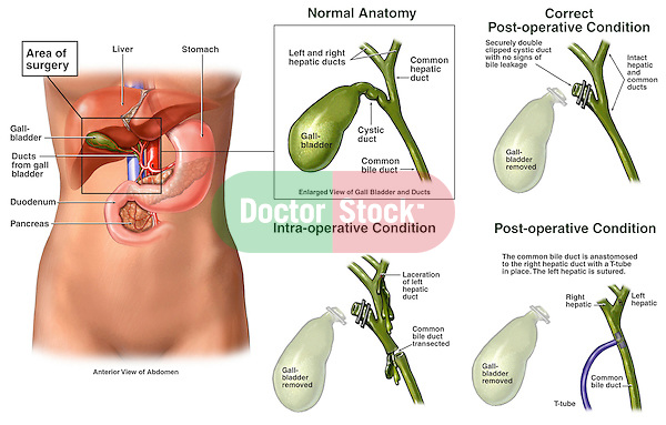 Progression Of Condition Following Gall Bladder Surgery Doctor Stock