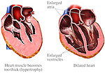 Dilated Heart Muscle Walls (Ventricles)