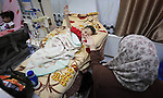 Palestinian patients undergo kidney dialysis at Al-Rantisi hospital, in Gaza city on August 4, 2020. Photo by Mahmoud Nasser
