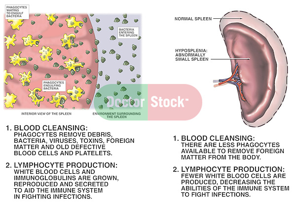 This medical exhibit depicts the physiology of the spleen and the dangers of hyposplenia (abnormally small spleen) using two illustrations. The first graphic pictures blood cleansing in the spleen at the cellular level. The second image demonstrates hyposplenia, comparing a normal and small spleen. Beneath the illustrations are captions describing the normal and adverse effects of hyposplenia on blood filtering and lymphocyte production.