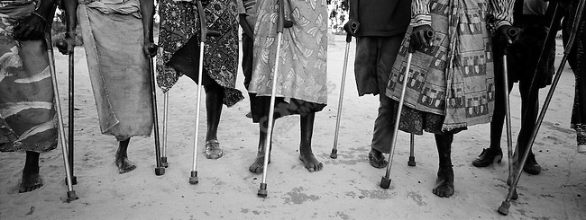 Women missing legs from mine accidents live in camp for disabled and elderly. Largo Cangalo Camp, suburb of Kuito, Bie?, Angola. November, 2002.