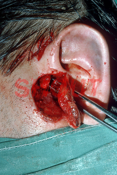 Laceration to the ear. This image may only be used to portray the subject in a positive manner..©shoutpictures.com..john@shoutpictures.com
