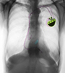 X-ray of the chest of an 84 year old woman showing a pacemaker, valve replacement, and COPD of the lungs.