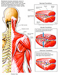 Dramatically depicts acute and chronic myofascial sprain / strain injury. Shows the bones, muscles and fascia of the head, neck and torso, including the trapezius, deltoid and deep shoulder muscles.  Displays an acute myofascial condition with torn, swollen muscle tissue and fascia compressing the intramuscular neurovascular elements. The final graphic portrays a chronic condition with post-traumatic scar tissue and muscle swelling causing ongoing aggravation and pain.