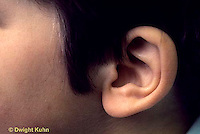 SN13-001b  Hearing - child's ear, unattached ear lobe - genetics