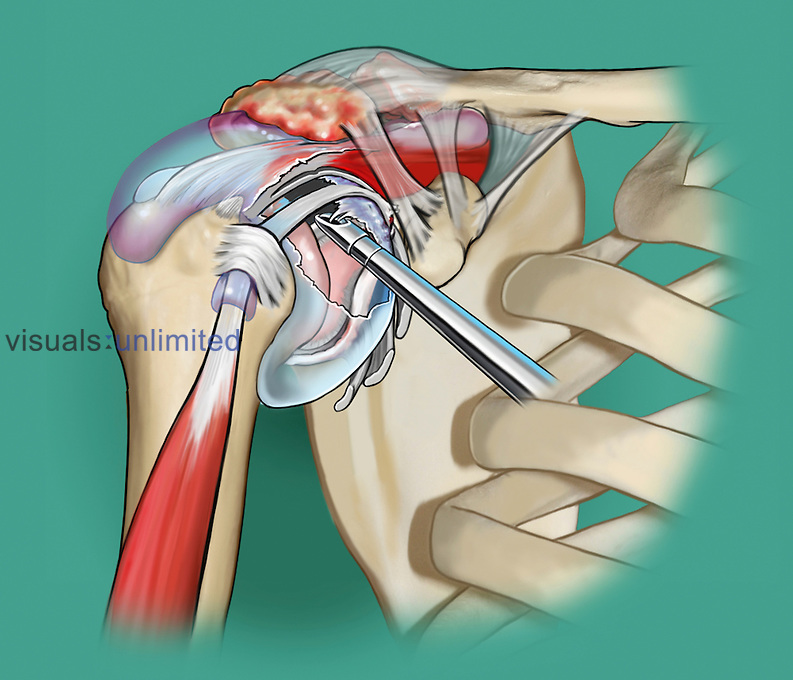 Biomedical illustration of the shoulder joint undergoing synovectomy