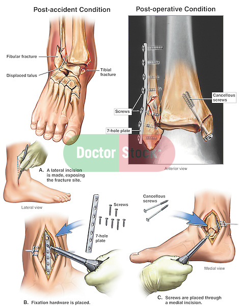 Broken Ankle - Displaced Trimalleolar Fractures with Fixation Surgery. This medical illustration series depicts: 1. Pre-operative view of the ankle exhibiting the displaced trimalleolar fractures of the distal tibia and fibula, 2. Lateral incision with placement of fibular plate and screws, 3. Medial view with placement of tibial fixation screws, and 4. Final post-operative view of the ankle, featuring a color highlighted film print of the actual patient x-ray.