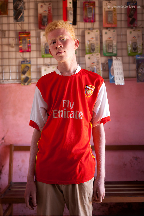 April 26, 2010  Khartoum, Sudan - Mohamed Magdy, is a 19 year old Sudanese albino. Mohamed is finishing school and works fixing computers. He lives in Khartoum with his mother and grand-father. His father left him when he was 40 days and never came back. He says people on the street think he is usual, others think he is an angel. Albinism is a genetic condition caused by a lack of melanin in the skin, eyes and hair. Photo credit: Benedicte Desrus