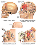 This custom medical exhibit features multiple images following a complex injury to the head. Images include: 1. External view of the skull with a depressed linear frontal bone skull fracture, 2. Cut-away view revealing the underlying epidural hematoma to the frontal lobe of the brain, 3. Surgical views revealing the incision into the scalp, drilling and removal of a skull bone flap, and the final suction evacuation of blood from the brain cavity.