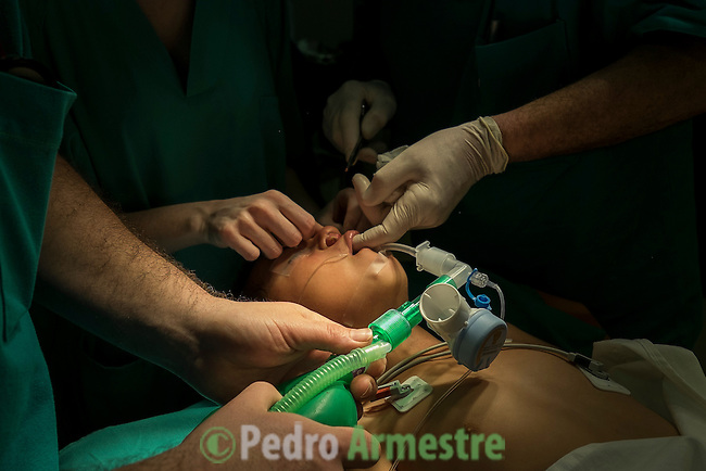 2015-03-05. Ilber: El extra&ntilde;o caso del ni&ntilde;o que tenia un diente debajo de la nariz. &copy; Calamar2/ Susana HIDALGO &amp; Pedro ARMESTRE<br /> <br /> Ilber Lozano Carranza tiene seis a&ntilde;os y vive en Nueva Cajamarca, en la selva del Amazonas, en Per&uacute;. A los tres a&ntilde;os fue operado de labio leporino pero una mala praxis m&eacute;dica le dej&oacute; con un maxilar y un diente por debajo de la nariz.  Ilber fue operado en marzo de 2015 de esta malformaci&oacute;n por un equipo de cirujanos espa&ntilde;oles dentro de una campa&ntilde;a solidaria realizada por la Sociedad Espa&ntilde;ola de Cirug&iacute;a Pl&aacute;stica, Reparadora y Est&eacute;tica (Secpre) junto a la ONG Juan Ciudad en el municipio de Chiclayo (Per&uacute;). El caso de Ilber supone una anomal&iacute;a extra&ntilde;a dentro de la cirug&iacute;a pl&aacute;stica y fue muy complejo de operar. A causa del diente que practicamente le taponaba la nariz, el ni&ntilde;o apenas pod&iacute;a respirar y al comer los alimentos se le sal&iacute;an por las fosas nasales.<br /> En el hospital Ilber estuvo acompa&ntilde;ado por sus padres, Ferm&iacute;n y Elisabeth. El padre trabaja en las plantaciones de caf&eacute;. La familia, muy humilde, tard&oacute; 12 horas en transporte p&uacute;blico en llegar desde Nueva Cajamarca hasta Chiclayo. &copy; Calamar2/Pedro ARMESTRE<br /> <br />  Ilber: The strange case of a child that had a tooth under the nose. &copy; Calamar2/ Susana HIDALGO &amp; Pedro ARMESTRE<br /> <br />  Ilber Lozano Carranza is six years old and lives in New Cajamarca, in the Amazon jungle in Peru. Three years ago he was operated of the cleft lip but a medical malpractice left him with a jawbone and a tooth below the nose. Ilber was operated in March 2015 of this malformation by a team of Spanish surgeons in a joint campaign by the Spanish Society of Plastic, Reconstructive and Aesthetic Surgery (SECPRE) with the NGO Juan Ciudad in the city of Chiclayo (Peru) This case is a 