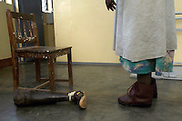 Akello Mary, patient at the AVSI/Gulu hospital orthopedic clinic tries on a new leg after wearing out her first one. She lost her foot to a landmine placed by the Lord's Resistance Army. (Rick D'Elia)<br />