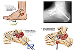 Fractured (Broken) Ankle Joint with Fusion Surgery. This custom medical exhibit features multiple images and an actual x-ray film print from a case involving the fusion of the subtalar joint region off the left ankle. Images include the following: 1. Initial incision and decortication of the subtalar joint, 2. Placement of fixation pins and screws, 3. Placement of bone graft to further aid in fusion. ..