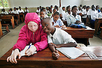 "Nine year old Irene studying at school. Irene is the only albino in her family. She says that when she was small she did not notice that she was different from anyone else. She explains: ""My parents made me feel loved and were always positive about my white skin. But as I got older, I noticed people teasing me because I was different. Sometimes it makes me sad, but I just stay quiet and ignore those people. They don't know anything."" After an eye examination at the Comprehensive Community Based Rehabilitation in Tanzania (CCBRT) Low Vision Unit, Irene was given sunglasses, spectacles and a telescope. She now sits in the front row in class and uses the telescope to improve the contrast of the words on the board. Discrimination against albinos is a serious problem throughout sub-Saharan Africa, but recently in Tanzania albinos have been killed and mutilated, victims of a growing criminal trade in albino body parts fuelled by superstition and greed. Limbs, skin, hair, genitals and blood are believed by witch doctors to bring good luck, and are sold to clients for large sums of money, carrying with them the promise of instant wealth."