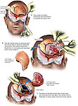 Brain Surgery - Partial Left Frontal Lobectomy. This full color stock medical illustration series pictures a post-traumatic left frontal lobectomy. The exhibit shows the exposure of the front of the skull, debridement of the fracture site, and removal of a portion of the frontal lobe.