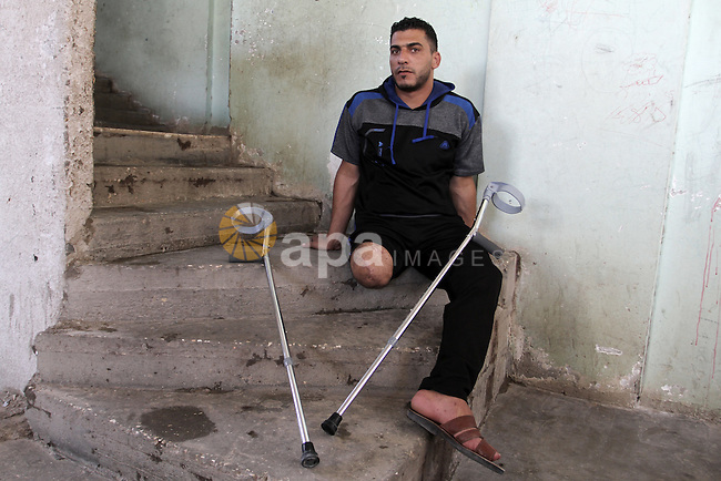 "Palestinian Wael al-Namla, who was injured during the 50-day war between Israel and Hamas militants in the summer of 2014, sits on the stairs at his house on July 30, 2015 in Rafah in the southern Gaza Strip. Wael al-Namla, 26, was reportedly amputated after being injured during an Israeli strike on August 1, 2014, which has become known as ""Black Friday"". An analysis of an Israeli assault in the Gaza Strip following the capture of one of its soldiers during last year's war in the Palestinian territory shows ""strong evidence"" of war crimes ""in their relentless and massive bombardment of residential areas of Rafah"", Amnesty International said. Photo by Abed Rahim Khatib"